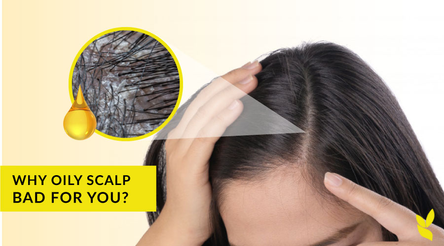 Why is an oily scalp bad for you? And 3 tips how to treat it.